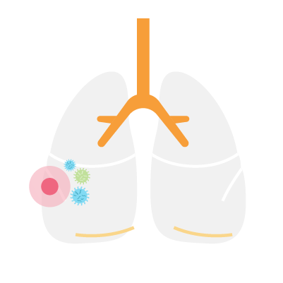 Small-Cell-Lung-cancer-trial